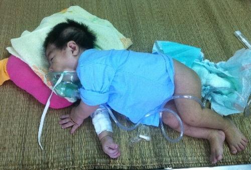 Đề phòng bệnh viêm tiểu phế quản ở trẻ trong mùa lạnh