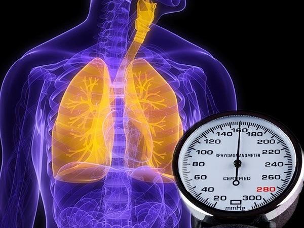 tăng áp động mạch phổi